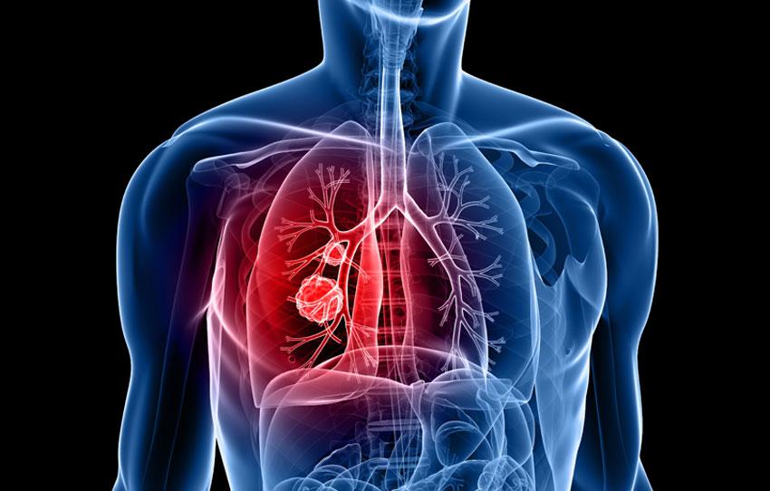 O nouă analiză de sânge pentru identificarea riscului de cancer la plămâni | evenimente-corporate.ro