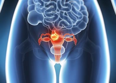 cancer col uterin traitement