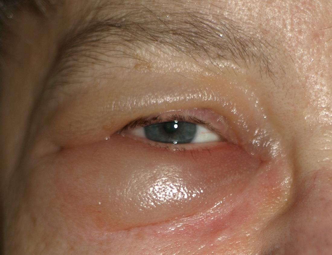 papilloma virale occhio)