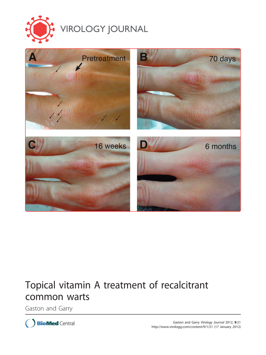 wart treatment topical