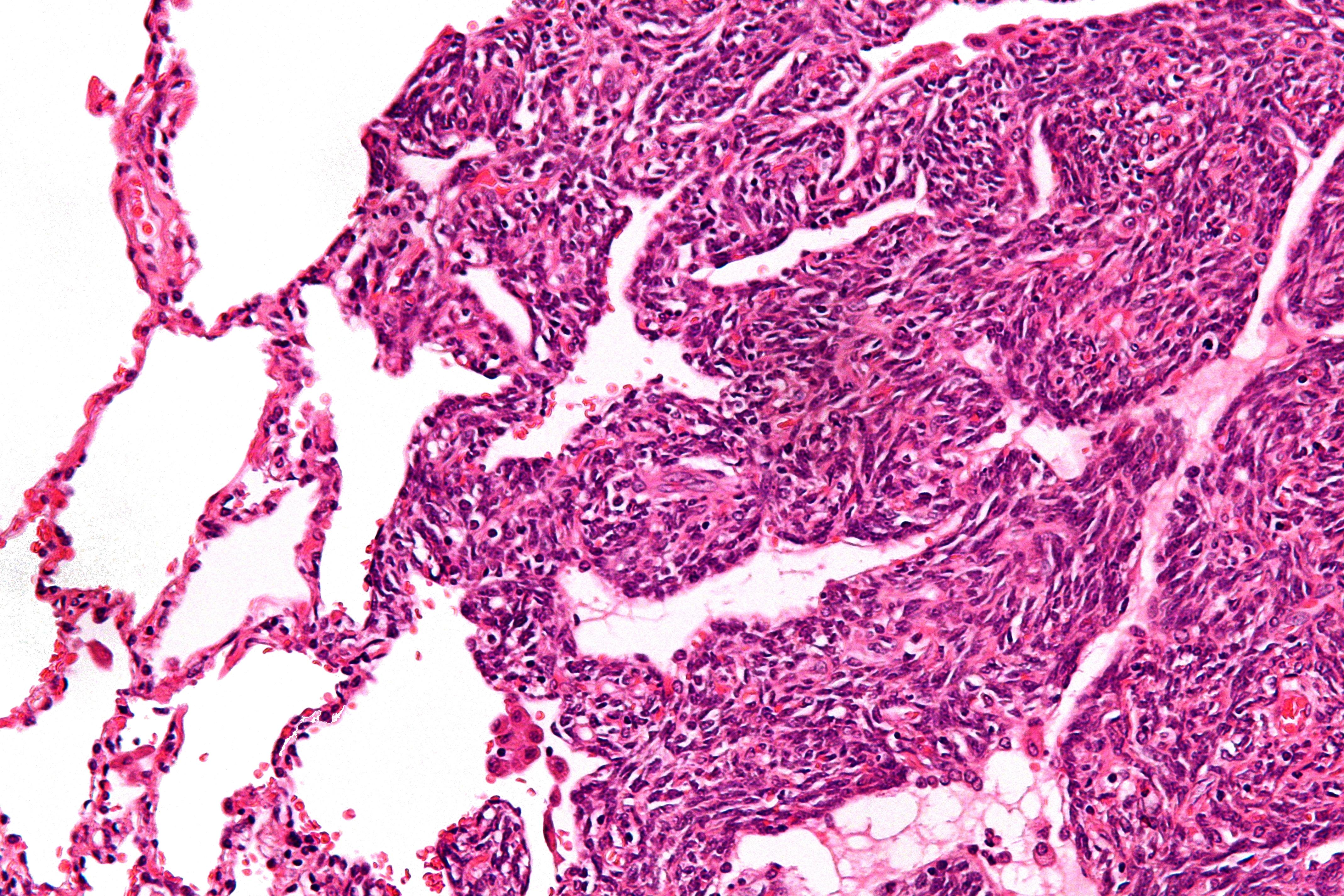 cancerul sarcoma