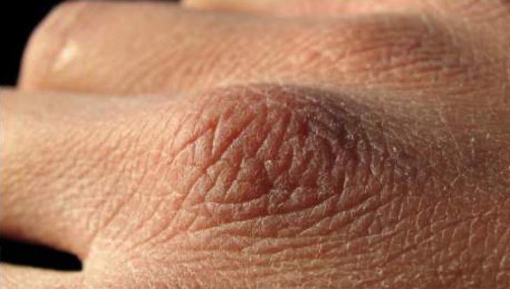 cancer de piele la maini)