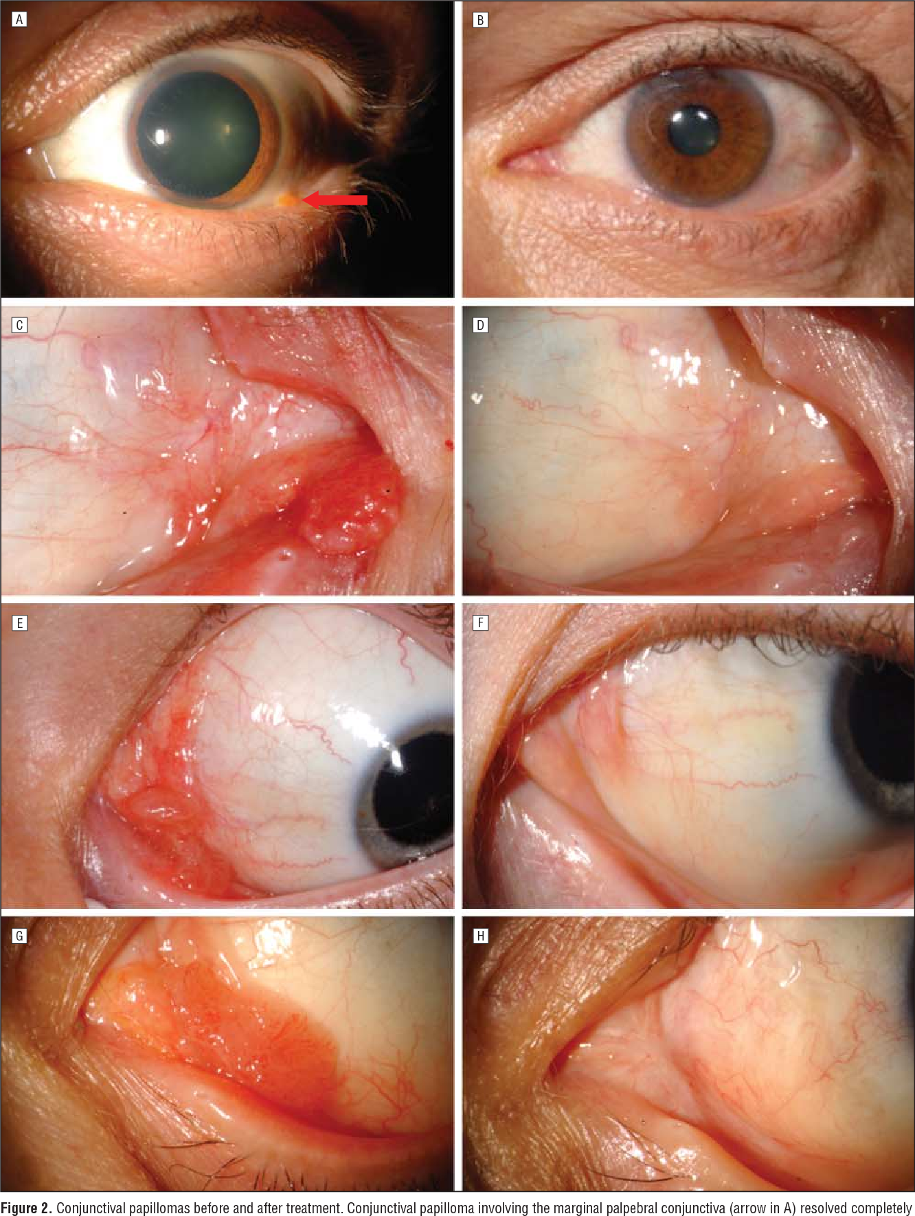 papilloma of conjunctiva