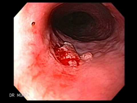 squamous cell papilloma esophagus