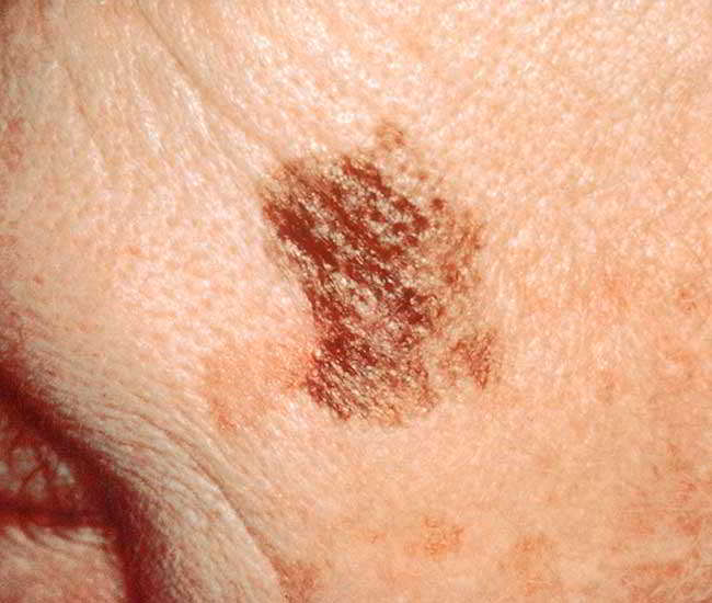cancer de piele mortalitate