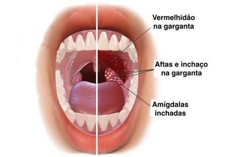 hpv na lingua e garganta