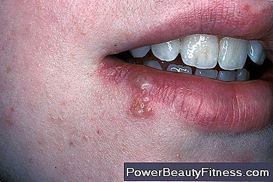 gola con papilloma virus)