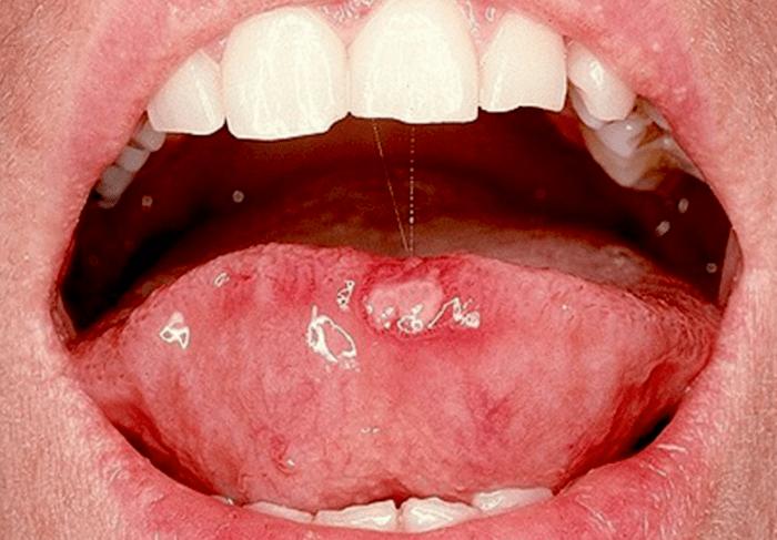 llagas en la boca virus del papiloma humano)