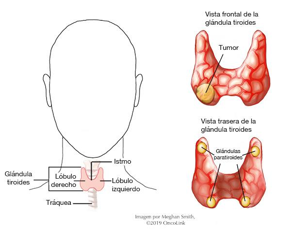 cancer de tiroide folicular