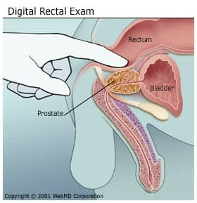 cancer rectal test
