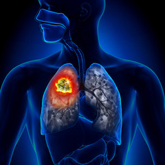 cancerul bronhopulmonar etiologie