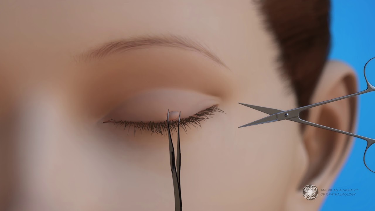 wart on lower eyelid removal)