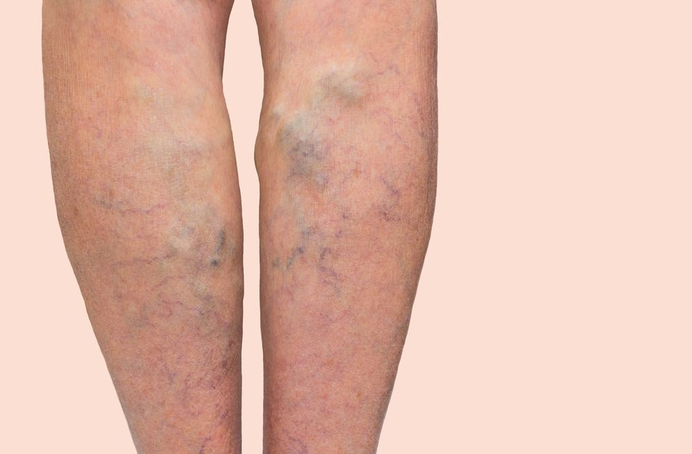 virus del papiloma sintomas