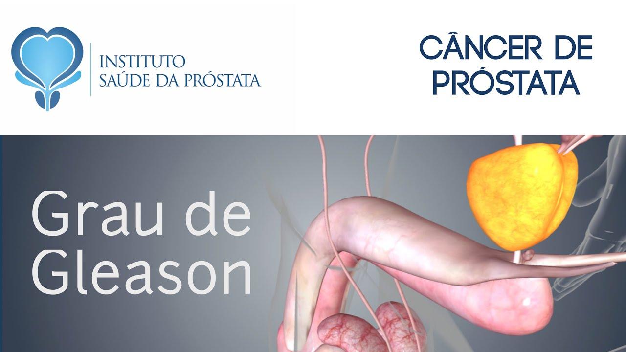 cancer de prostata grau 7 tem cura)