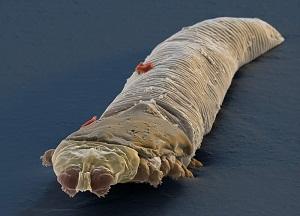 tratament parazit demodex