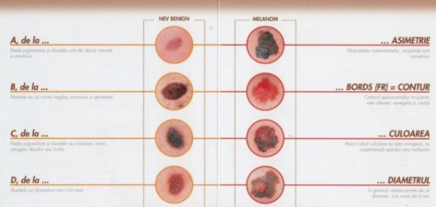 cancerul de piele la copii)