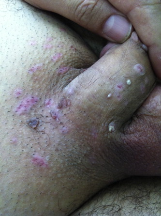 hpv virus krebsvorstufen