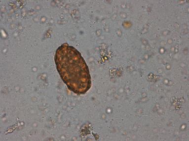 oua de paraziti