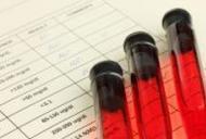 analize sange pentru paraziti