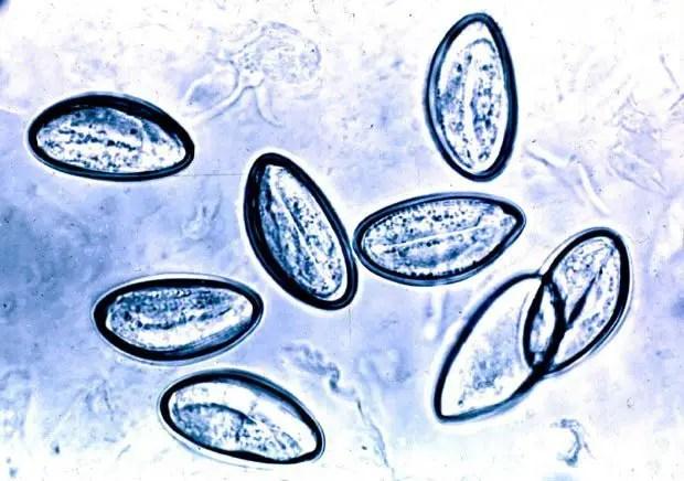 enterobius vermicularis test de graham)