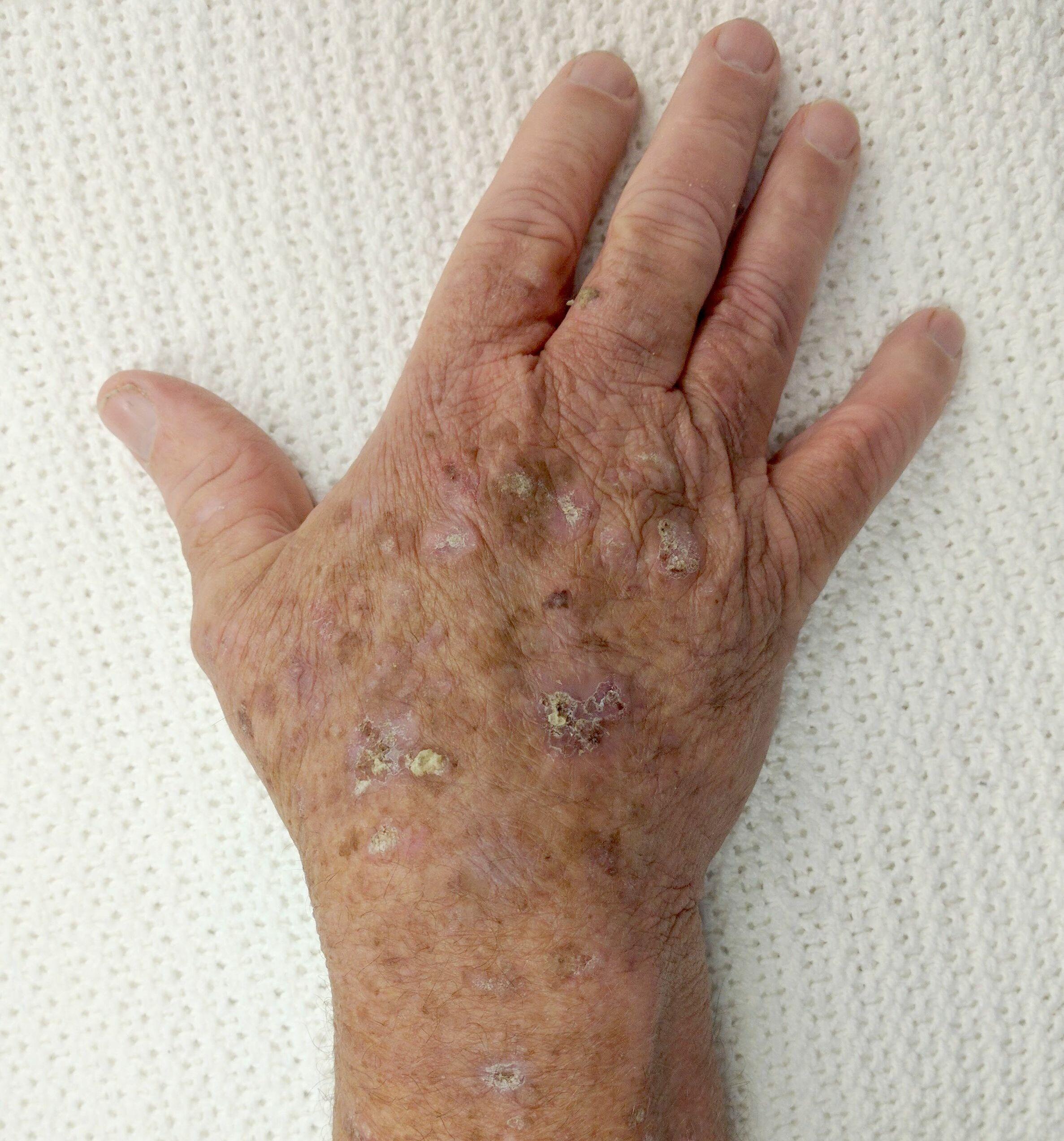 papillomatosis skin dermnet)