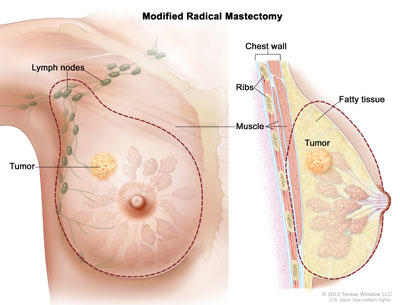 papilloma breast surgery recovery time papillomavirus cancer du cou