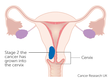 uterine cancer is dangerous)