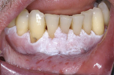 cancer bucal gingivitis)