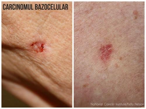Cancerul de piele non-melanom