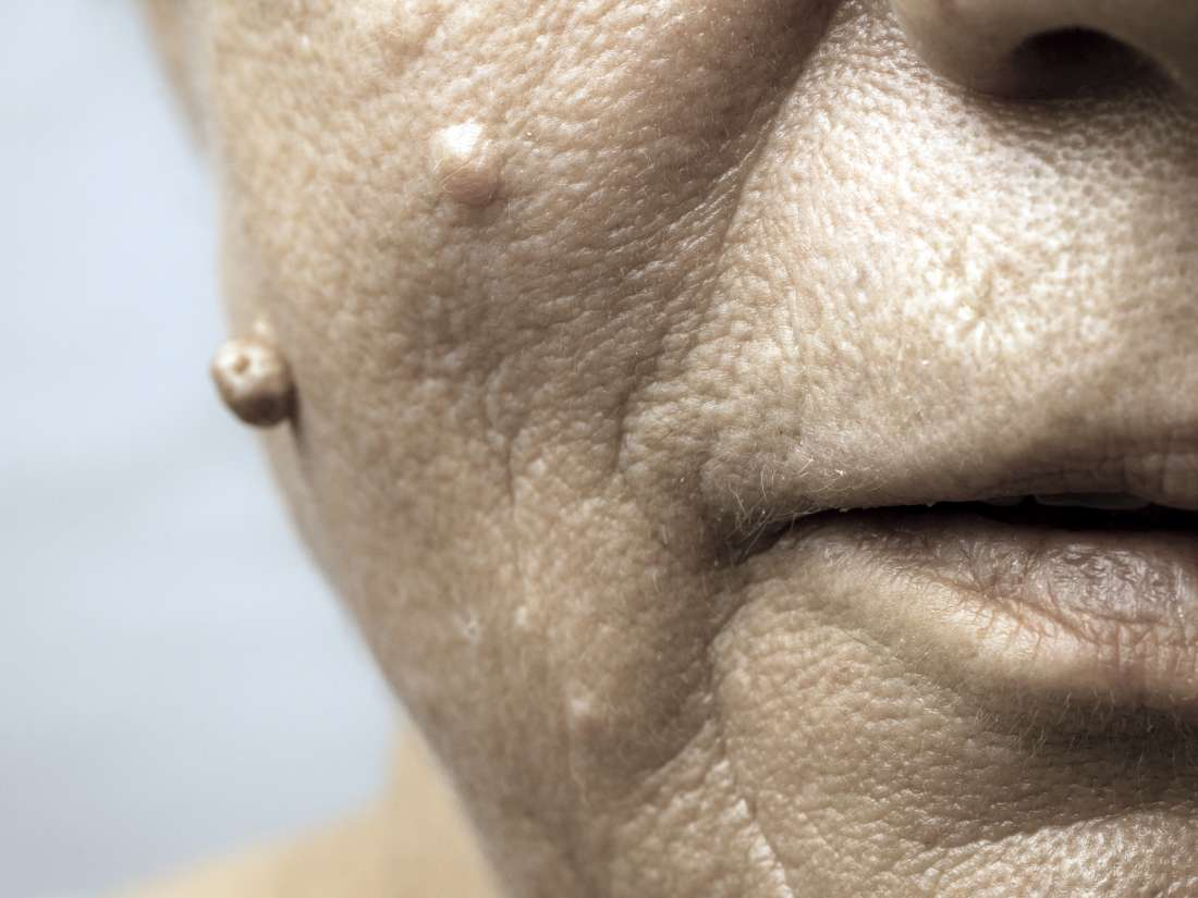 hpv warts on face)