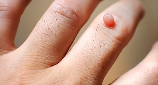 hpv warts in hands