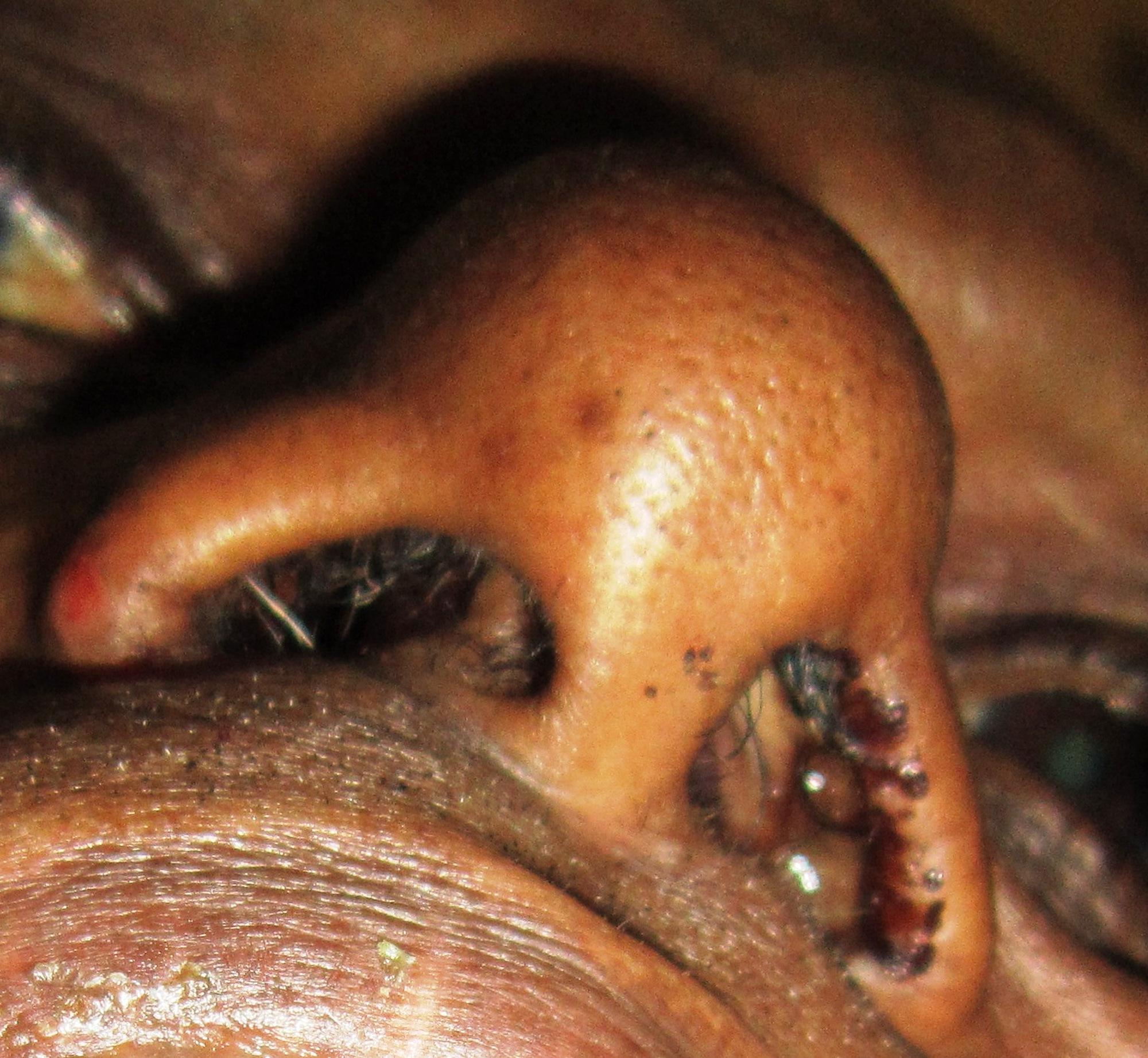 papilloma nose surgery