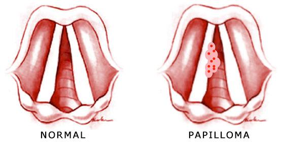 papillomas in throat symptoms