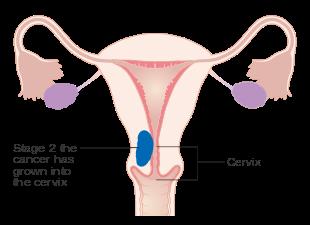 sarcoma cancer uterine)