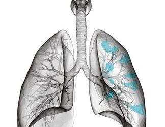 cancer bronhopulmonar stadializare