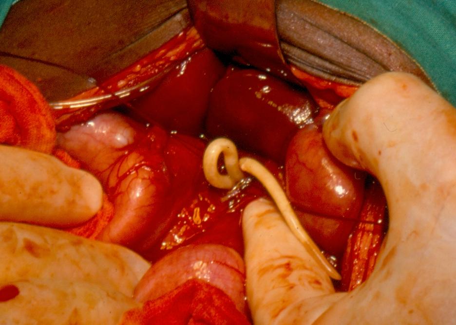 hookworm helminth)