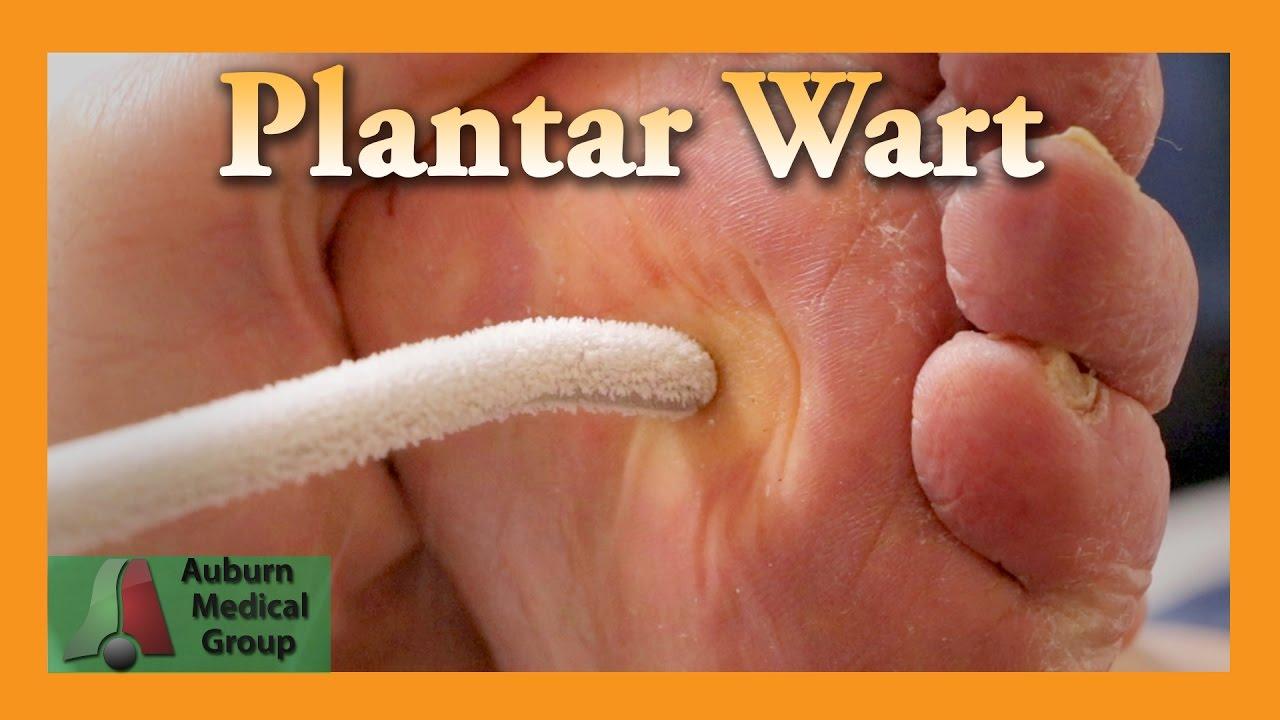 foot wart healing)