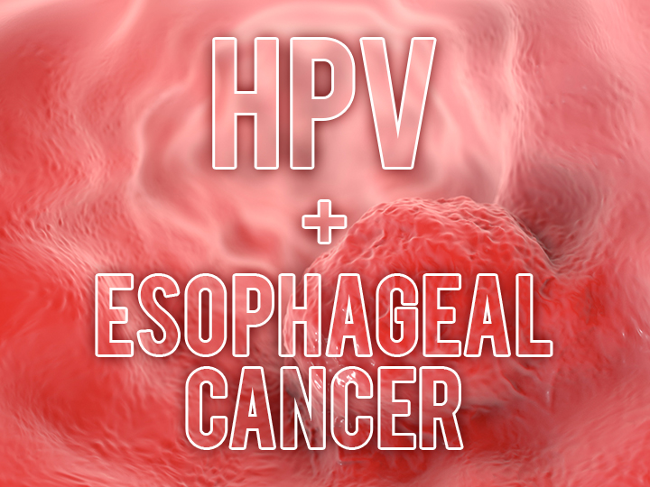 hpv virus and esophageal cancer