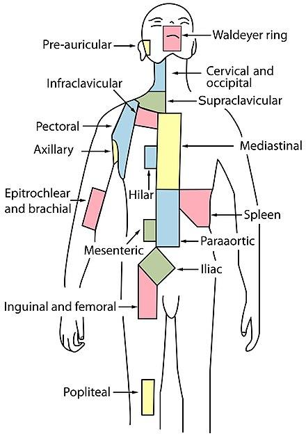 cancer ganglions hodgkin stade 4)