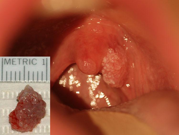 papilloma wart on the uvula