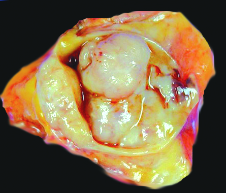 cancer renal metastaze osoase