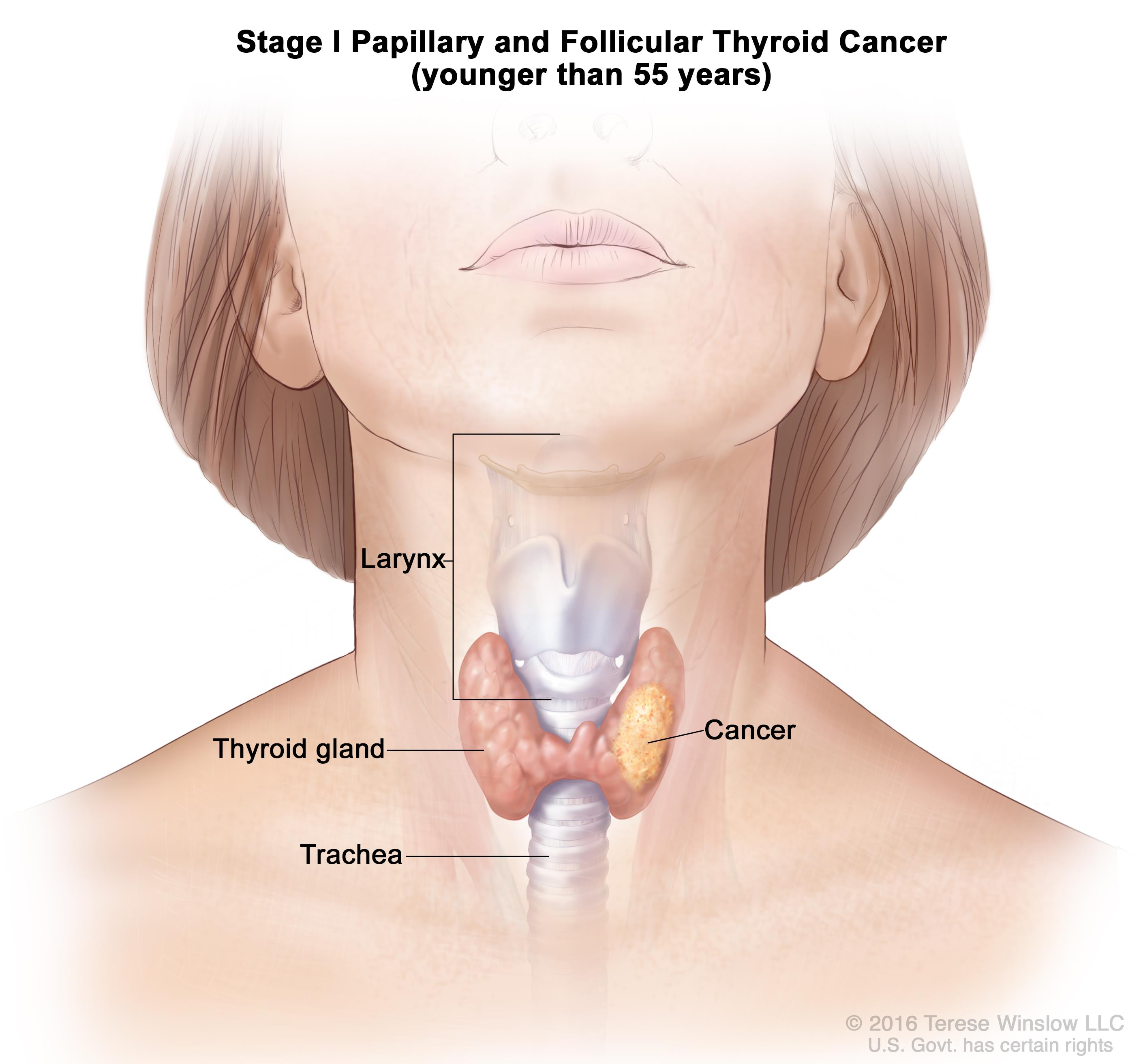 papillary thyroid cancer what were your symptoms)