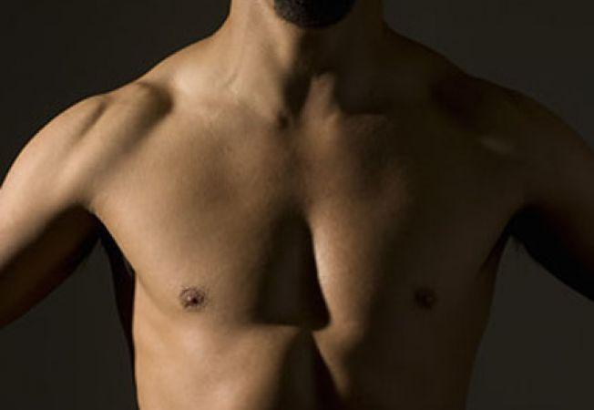 cancerul de san la barbati