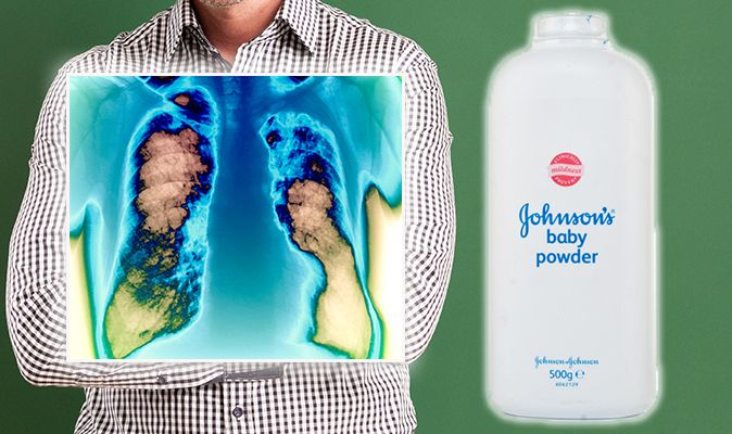 ovarian cancer talcum powder)