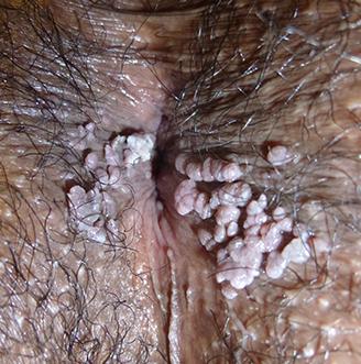 papillomavirus homme porteur)