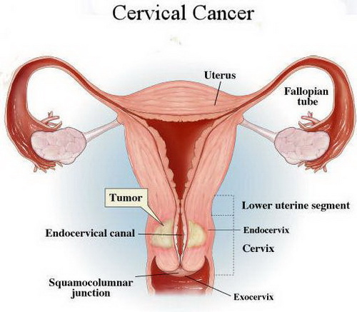 uterine cancer and cervix