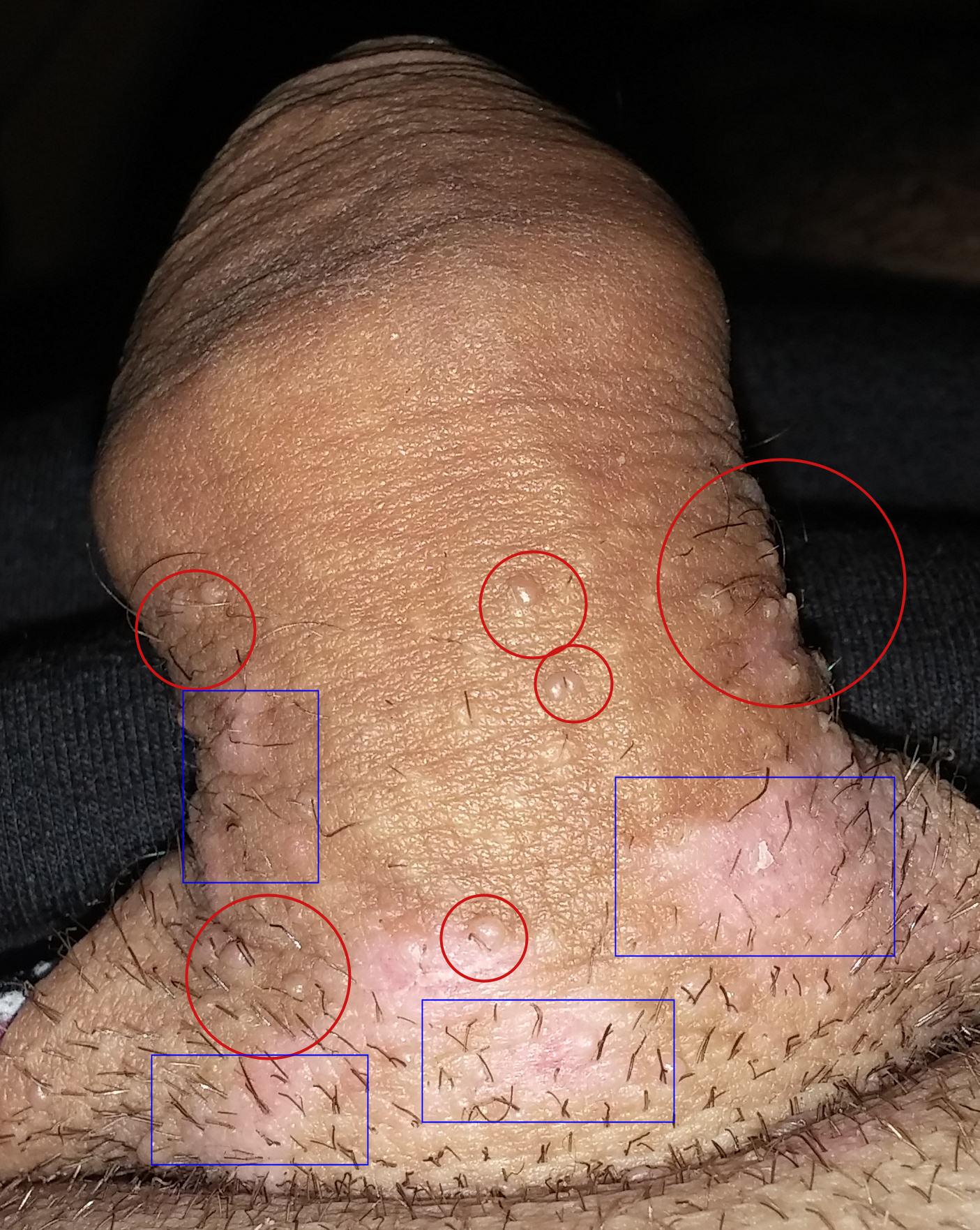 papillomavirus sur un homme)