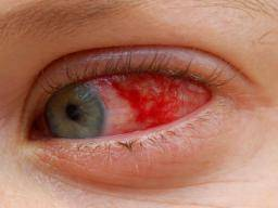 hpv red eye papiloma humano signos y sintomas