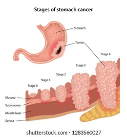 Discovering how stomach cancer spreads - News - University of Liverpool
