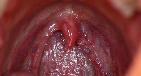 papiloma virus en la garganta sintomas